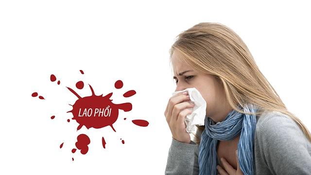 Sinh viên bị bệnh lao không được phép đi du học